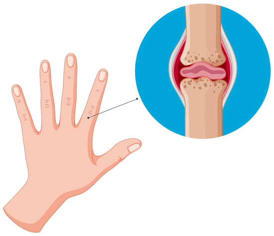 CAN STEM CELL INJECTION THERAPY PREVENT ARTHRITIS PAIN