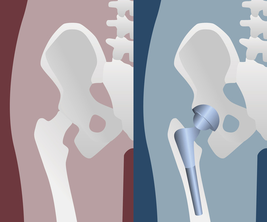 DO I HAVE TO GET HIP REPLACEMENT SURGERY? - RegenerVate